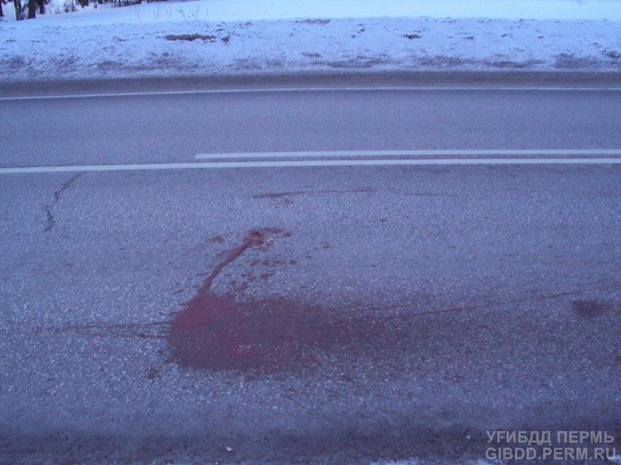 В Добрянском районе неизвестным водителем сбит пешеход